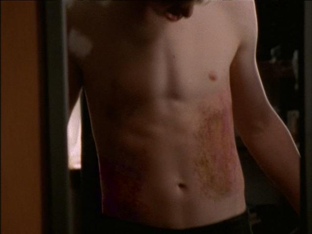 Craig, Bruised